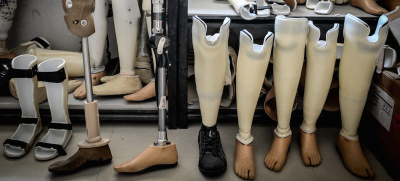 """Illustration for article titled New Prosthetics That Connect Right to the Bone Let Amputees """"Feel"""" Again"""