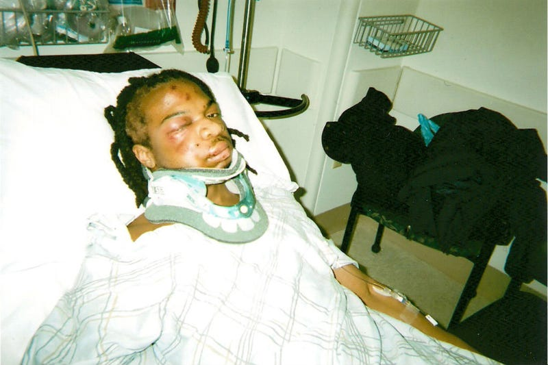 Jordan Miles after being beaten by police
