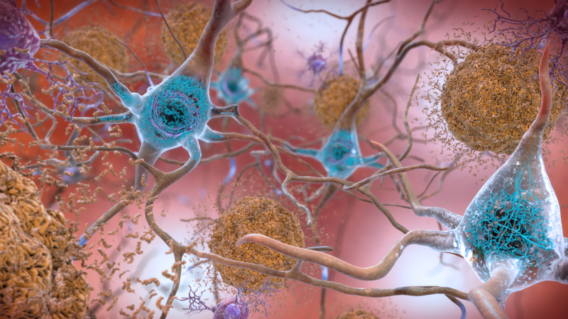 A series of new guidelines might redefine how researchers study and classify Alzheimer's disease.