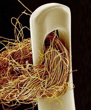 Illustration for article titled Lélegzetelállító mikroszkópos felvételek: gyönyörűek és félelmetesek