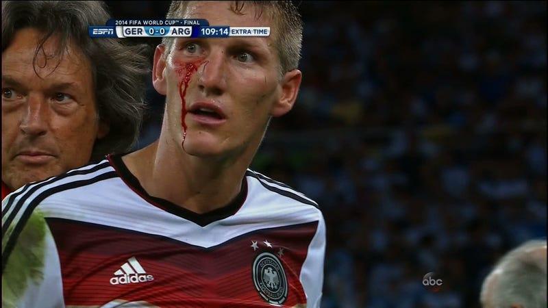 Illustration for article titled Schweinsteiger: Bloodied