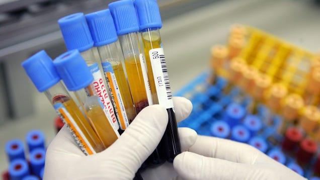 SARS Survivors Vaccinated Against Covid-19 May Have Super-Antibodies to Coronaviruses