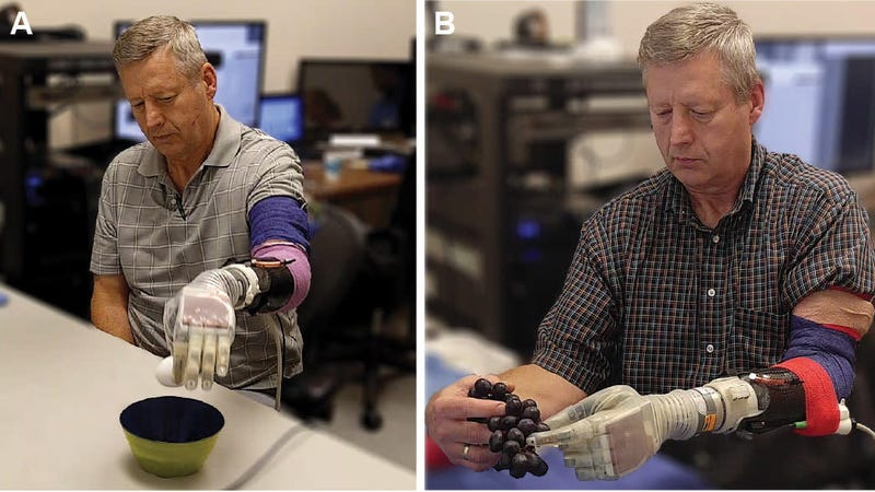 Scientists create prosthetic arm that lets patients feel touch again
