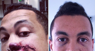 Illustration for article titled Giancarlo Stanton's Broken Face Is Improving
