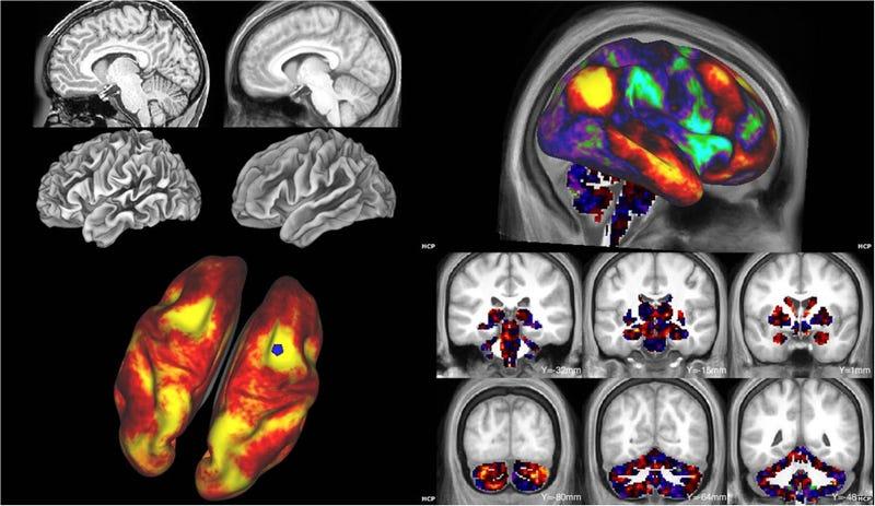 Illustration for article titled Estas son las imágenes más detalladas del cerebro jamás tomadas