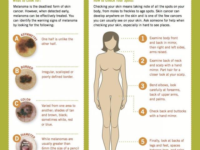 मेलानोमा के ABCDEs के साथ त्वचा कैंसर के लिए अपने शरीर की जाँच करें