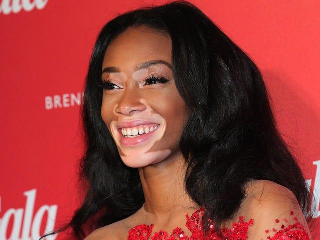 <i>Top Model</i>'sChantelle Winnie Recalls Being Bullied for Having Vitiligo