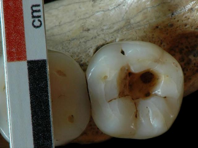Hallan la 1ª prueba de intervenciones dentales hace 14.000 años
