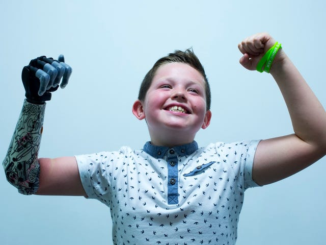 Kid Gets Awesome New Bionic Hand, Reminds Us Not Everything is Garbage