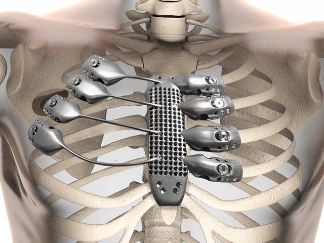 세계 최초의 3D - 인쇄 티타늄 리브 케이지는 의료 놀라운 일입니다