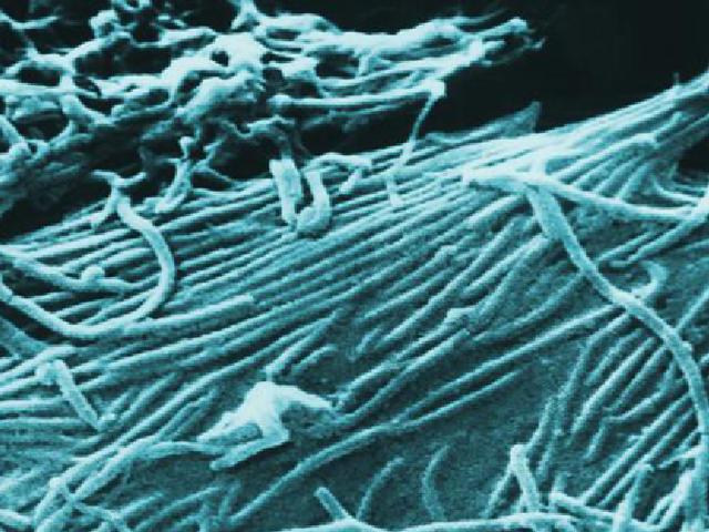 Αυτό είναι το πώς η Ebola αντιστέκεται στη θεραπεία με κοκτέιλ αντισωμάτων