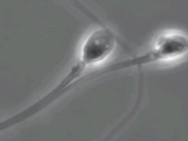 Chemisch invriezen van spermastaarten zou de sleutel kunnen zijn tot een omkeerbaar anticonceptiemiddel voor mannen