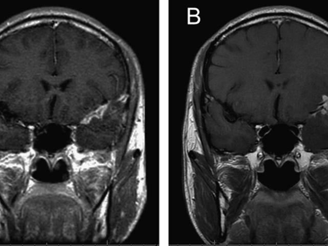 Kajian Baru Mencadangkan Alzheimer Telah Dihubungkan dengan Kulat Otak