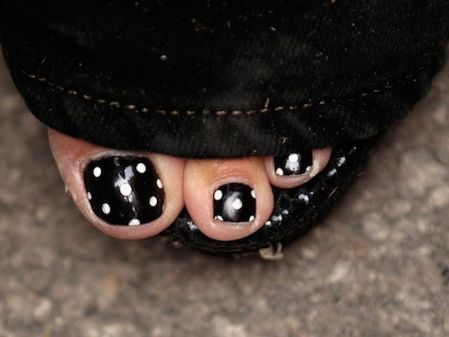 Guess Whose Polka-Dot Pedicure This Is