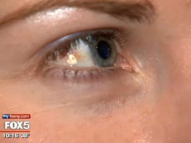Woman Has Heart-Shaped Twinkle Surgically Implanted on Her Eyeball