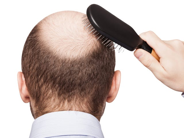 Researchers Grow New Hair From Stem Cells For the First Time