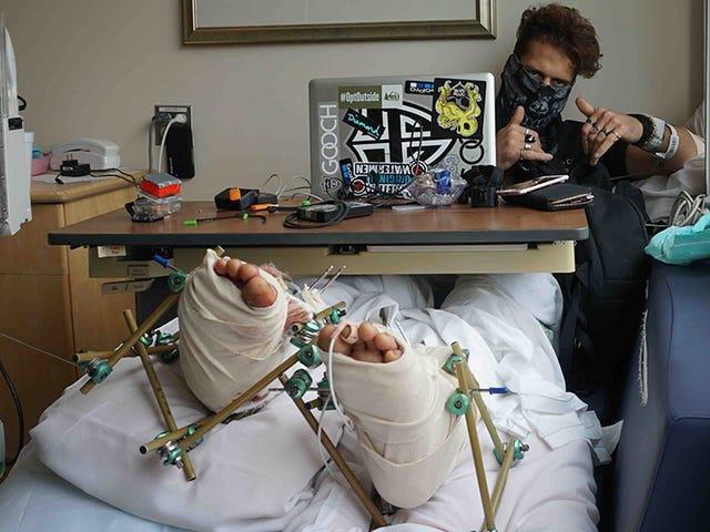 Daredevil de Pool-Jumping necesita nuevos pies después de un accidente horrible