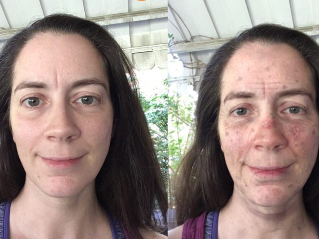 This App Will Terrify You Into Wearing Sunscreen