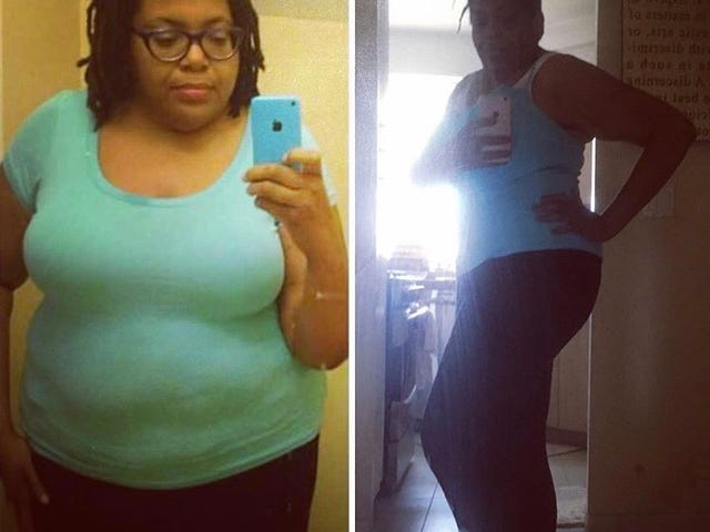 Formerly Fat: How Bariatric Surgery Helped Me Transform My Life