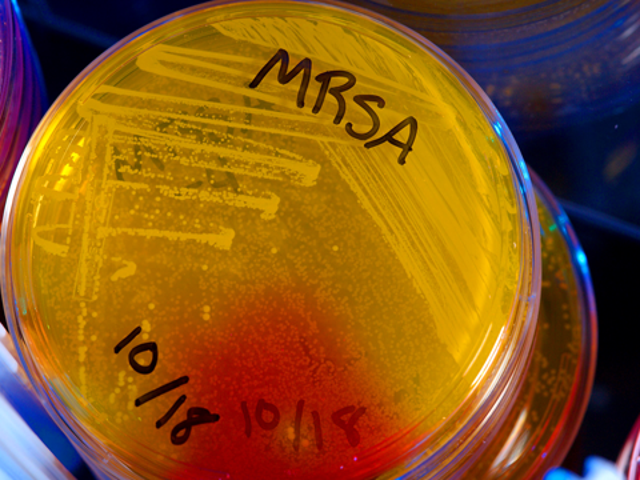 Vi hittade ett nytt antibiotika, och ännu bättre, ett nytt sätt att hitta antibiotika