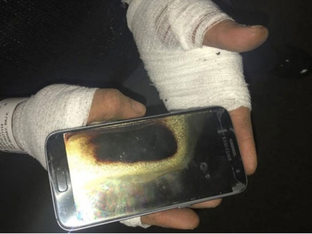 Adam Galaxy S7'nin Elinde Patladığını Söyledi: 'Gözlerimi Kaybetmeliydim'