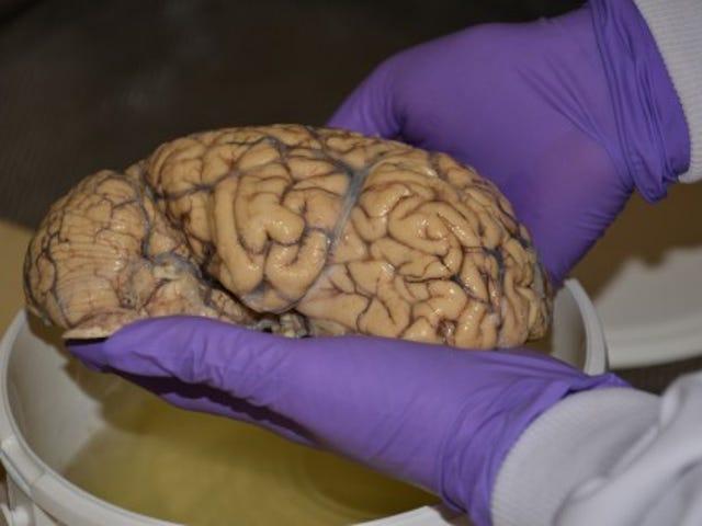 Bristol Brain Bank'da depozito yatırın