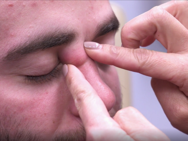 Ini adalah Cara Pop A Pimple