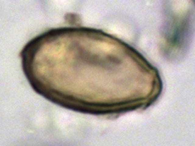 Researchers Look At Ancient Poop To Discover The History of Infectious Diseases