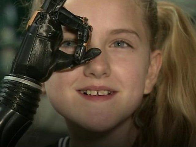 3D printed bionic hands trial begins