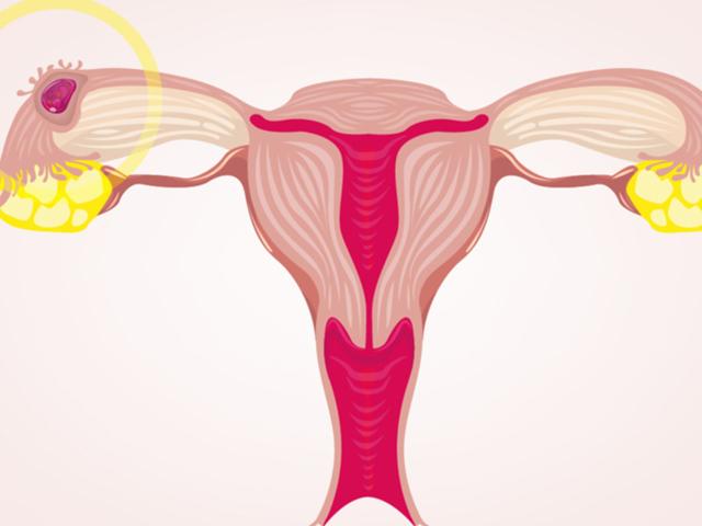Hvorfor en ektopisk graviditet ikke kan 'reimplanteres'