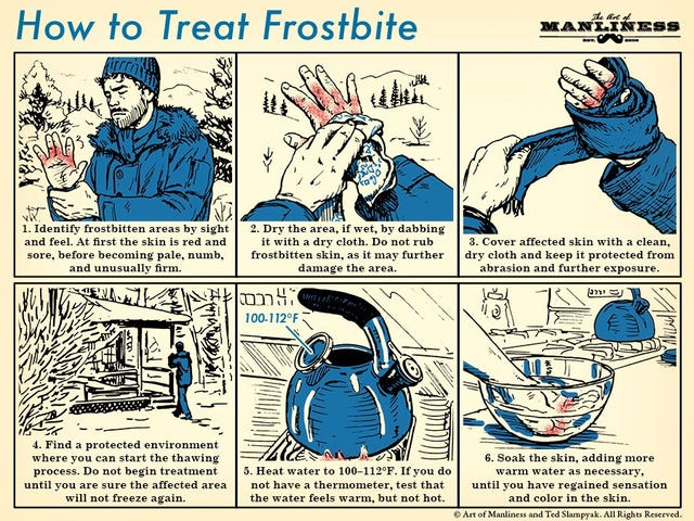 This Graphic Shows You How to Treat Frostbite