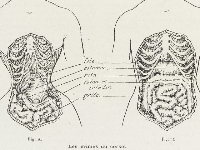 Apparently, Corsets Are Just Super Chill Rib Bras