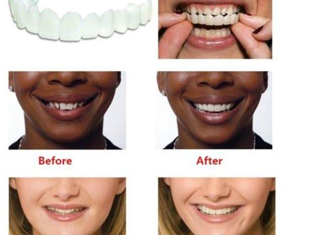 Gigi Pemutihan Snap Pada Gigi Senyum Dentur Kosmetik Segera