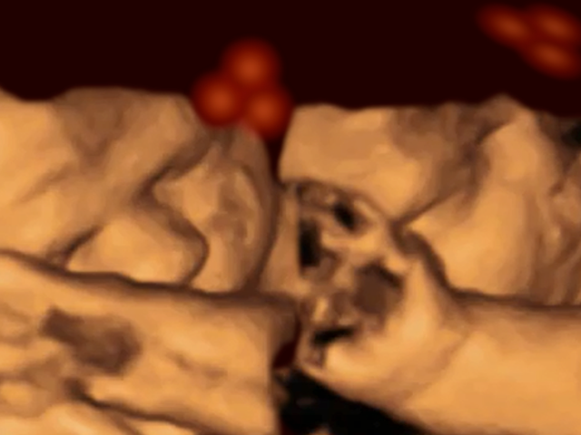 Can Fetuses Recognize Faces When They're Still in the Womb? [Updated]