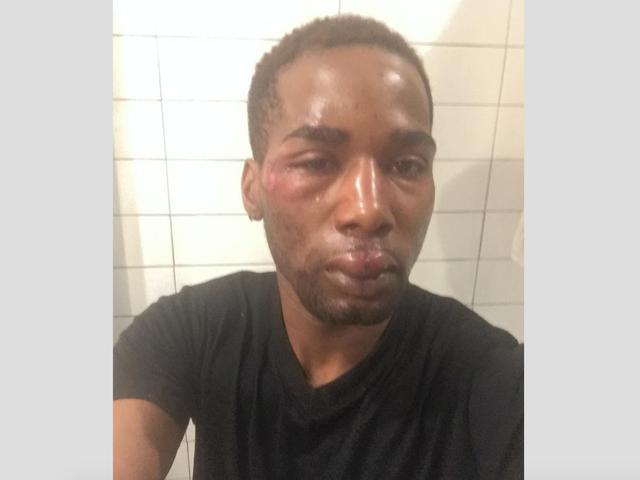 Bronx, NY, Man Påstått slått av Pizzeria Medarbeider Med Tre Pizza-Making Tool Krever Rettssak