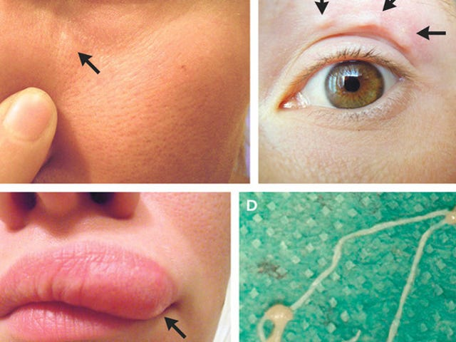 This Woman's Horrifying Selfies Helped Track the Parasitic Worm Crawling in Her Face