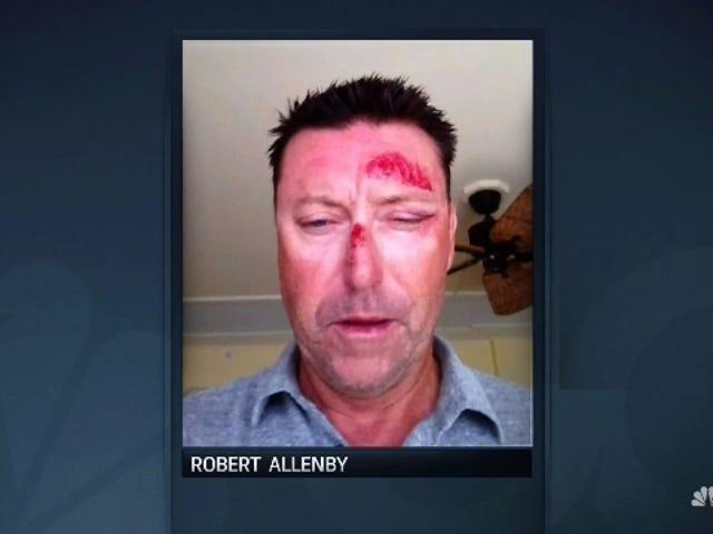 นักกอล์ฟ PGA โรเบิร์ตแอลเลนบี้ถูกลักพาตัวโดยกล่าวหาว่าถูกทุบตีในฮาวาย