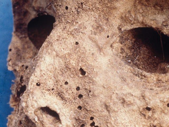 Scientists Discover 16th-Century Child Mummy Had Seemingly Modern Strain of Hepatitis B