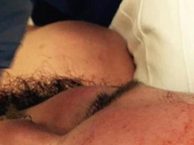 Look At This Wrestler's Gross Head Wound, Or Don't. Do What You Want.