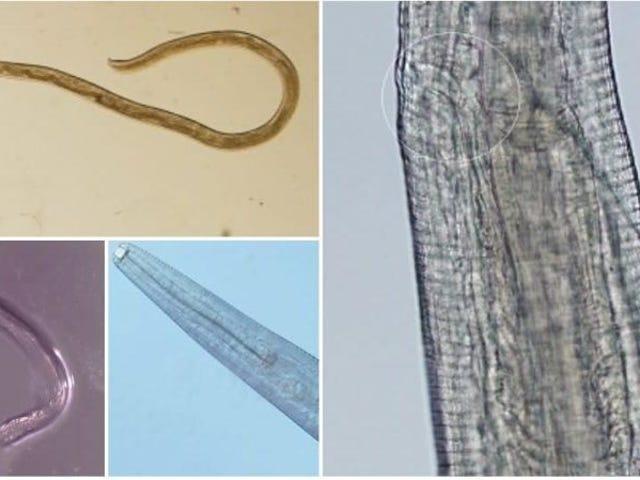 En kvinde finder parasitorme i øjnene efter at have løbet gennem en sverm af fluer
