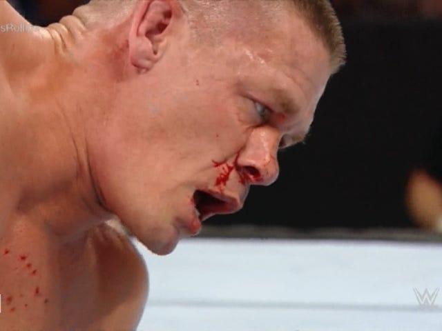 Đấu vật giả, nhưng mũi gãy của John Cena là tất cả quá thực