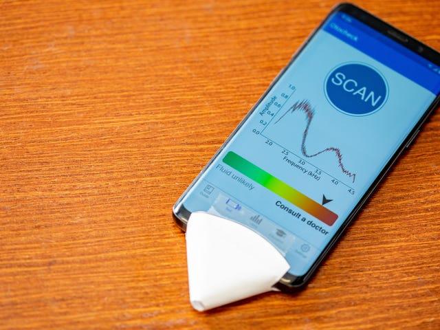 Para saintis mengatakan bahawa mereka telah membuat aplikasi telefon pintar yang dapat mendengar jangkitan telinga