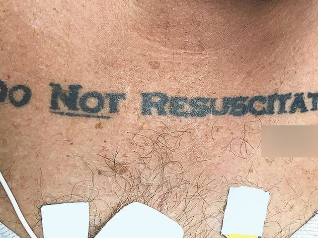 Hindi Nakakaalam na Pasyente Sa 'Huwag Muling Muling Ipagtanggol' Mga Tattoo Nagiging sanhi ng Etikal na Conundrum sa Ospital <em></em>