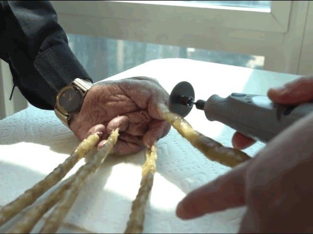 El hombre que llevaba sin cortarse las uñas desde 1952 acaba de poner fin a su récord con una sierra mecánica
