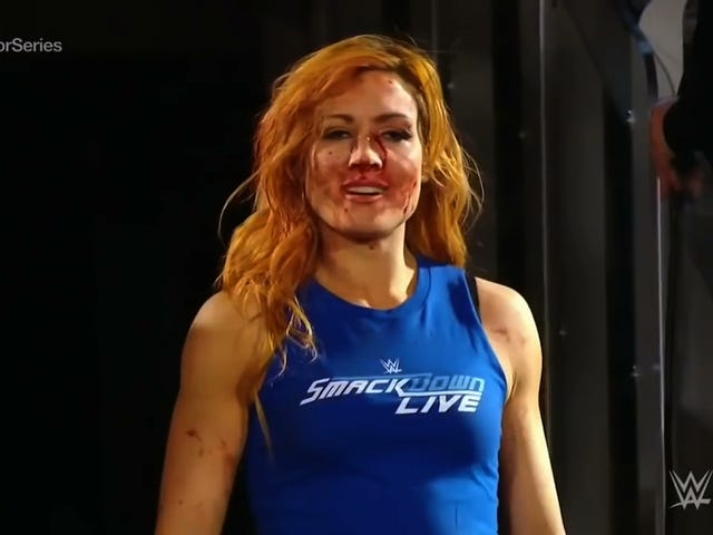 """Broken Face"" And All, Becky Lynch Is Suddenly The Biggest Star In WWE"