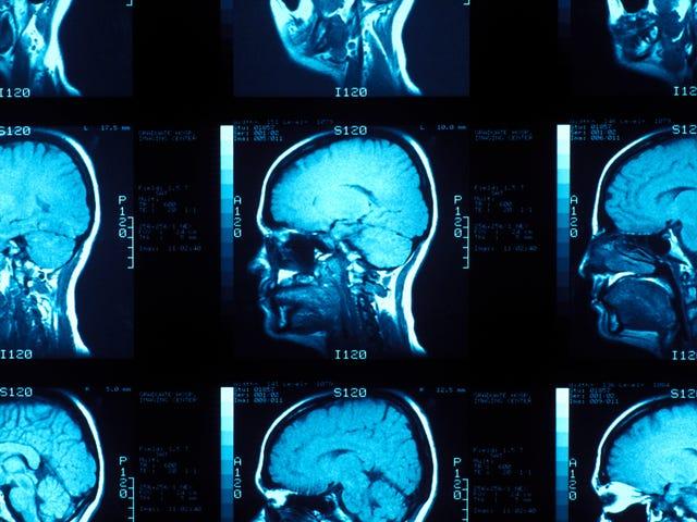 科学者たちは脳の中で意識がどのように見えるのかを見つけることに近づく
