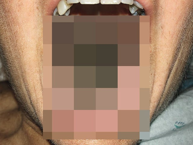 Bizarre Reaction to Antibiotics Gave Woman 'Black Hairy Tongue'