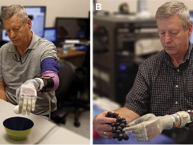 Scientists Have Created a Prosthetic Arm That Lets Patients Feel Touch Again