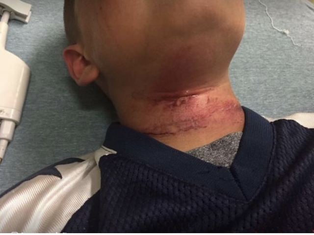 NH Police Refuse to Release Information in Case of 8-Year-Old Biracial Boy Who Was Nearly Lynched