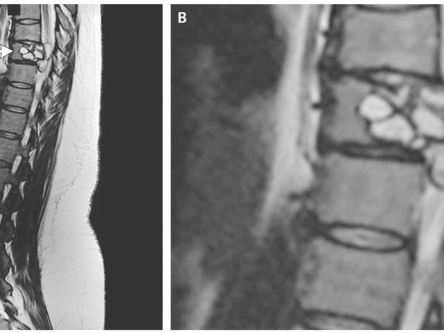 Doctors Find Tapeworm Larvae in Spine of Woman Hobbled by 'Electric Shocks' in Legs